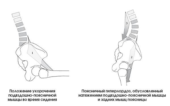 Гиперлордоз поясничного отдела позвоночника. Как его лечат