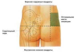Седалищный нерв. Внутримышечные инъекции