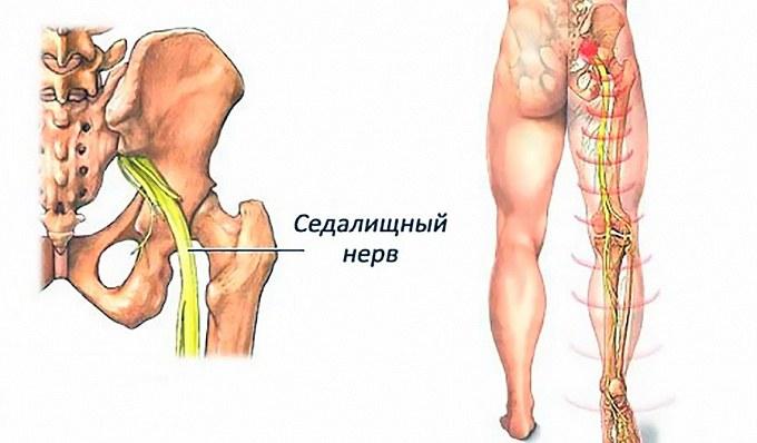 Где проходит седалищный нерв. Внутримышечные инъекции в ягодицу