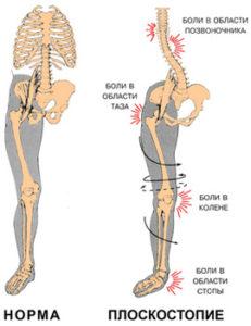 Плоскостопие, причина болей в колене