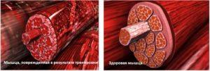 Как выглядят мышцы с молочной кислотой